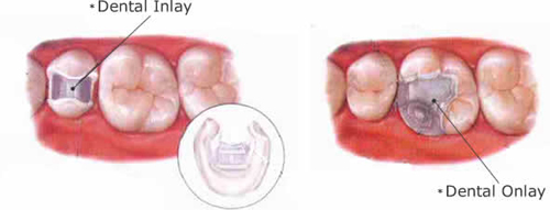 Dental Bridges and Teeth Crowns